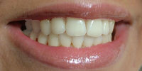Tanden wit maken [1]